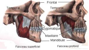 TMJ muscle masseter